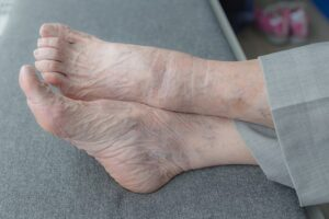 Best Shoes for Aging Feet